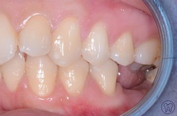 caso1-1-implantologia